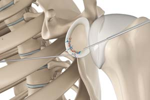 Arthroscopic Bankart Repair